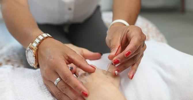 Chiropractic with Acupuncture/Dry Needling